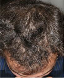 Chute de cheveux et Perte de cheveux (alopécie) - traitement.