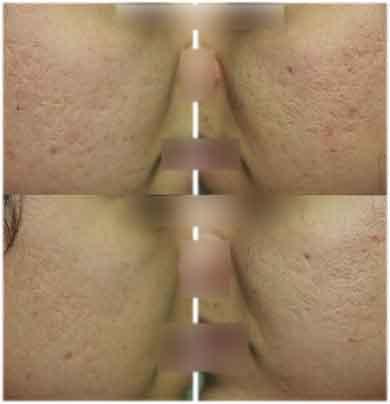comment traiter l'acné d'un réglage hormonale