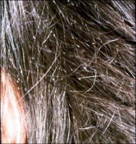 Les masques pour les cheveux avec noir et le kaolin