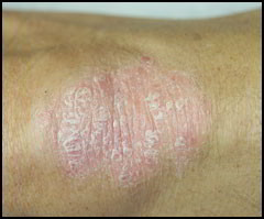 photo psoriasis coude