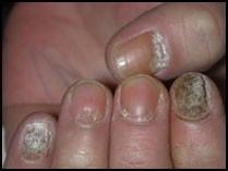 Likopid les rappels du traitement du psoriasis