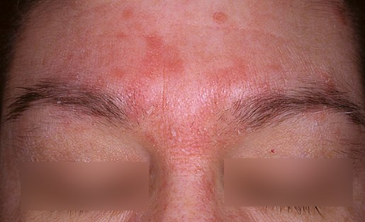Solkoseril au psoriasis sur la tête