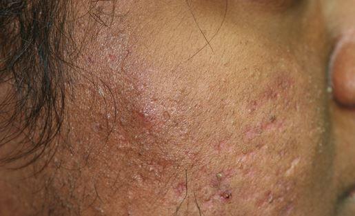 Les mélanges laitiers et atopitchesky la dermatite chez