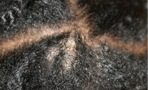Dietoterapiya à atopitcheskom la dermatite chez les enfants