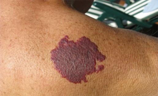 Le traitement du microorganisme végétal au levain des ongles sur les pieds