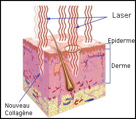 Acné - Traitement de l'acné & Cicatrices d'acné | Dr Abimelec