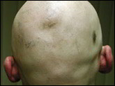 Alopecia areata totalis pattern