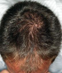traction alopecia steroids