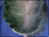 Female-pattern baldness