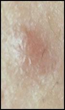 Acné - Traitement de l'acné & Cicatrices d'acné   Dr Abimelec