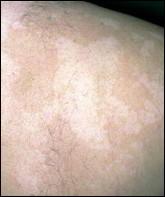 Les taches de pigment sur le corps que faire