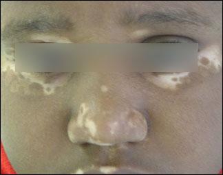 Vitiligo & traitement du vitiligo | Dr Abimelec – Dermatologue