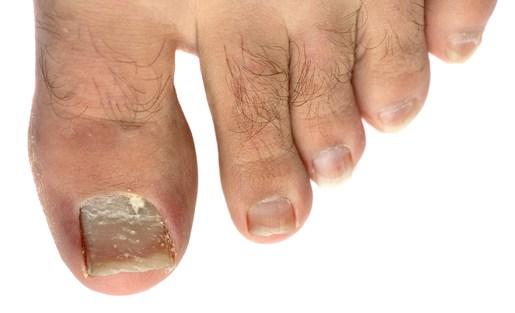 Abimelec   Nail Fungus And Fungal Nail Infection  Nail