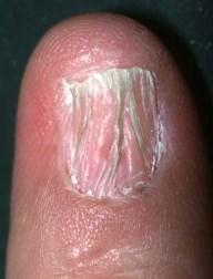 La démangeaison de la peau leczéma microbien