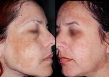 Le mélange cosmétique et les huiles volatiles pour la peau autour des yeux