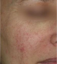 Rosacée, couperose, acné rosacée et traitement | Dr Abimelec