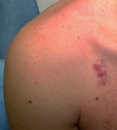 Aspect typique de dermatofibrosarcome